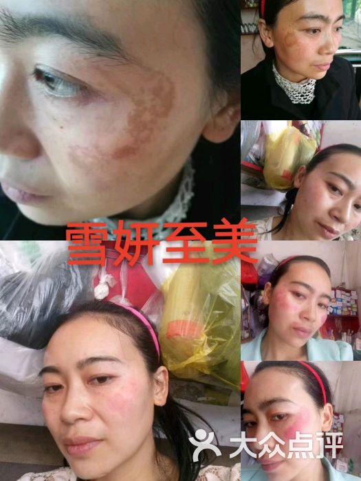雪妍至美专业祛斑护肤中心图片 - 第4张图片