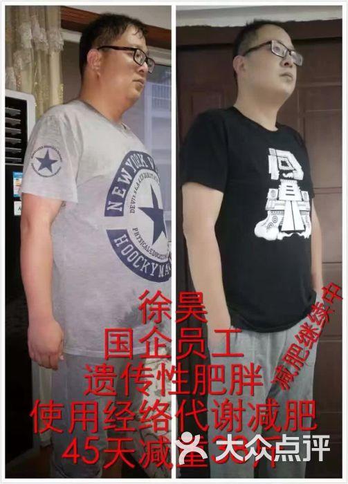 男士减肥真人案例