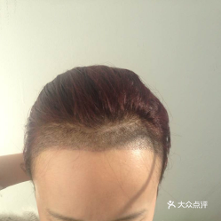 植发是什么原理直荐瑞丽诗_瑞丽红是什么颜色