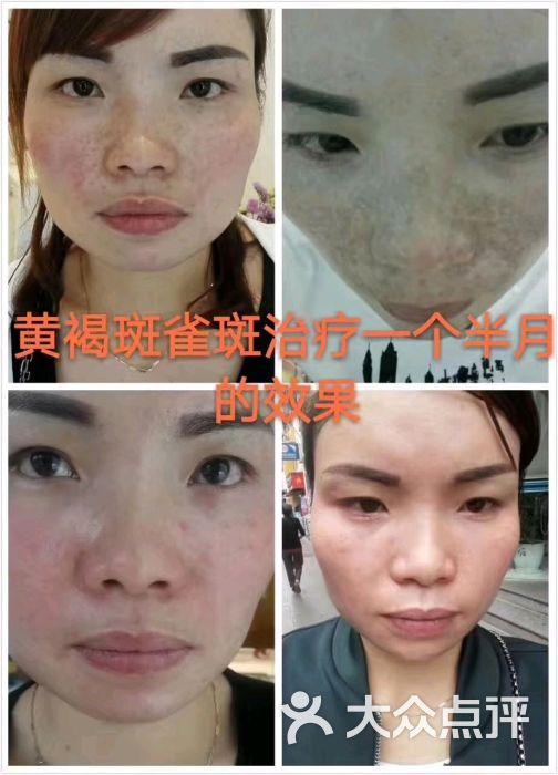 雪妍至美专业祛斑护肤中心图片 - 第7张图片