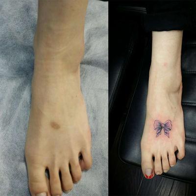 蝴蝶结遮盖疤痕纹身款式图